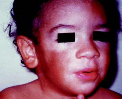 Chediak-Higashi Syndrome pictures
