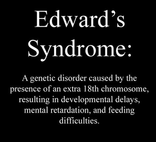 Edward syndrome photo