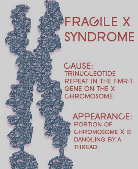 Fragile x syndrome photos
