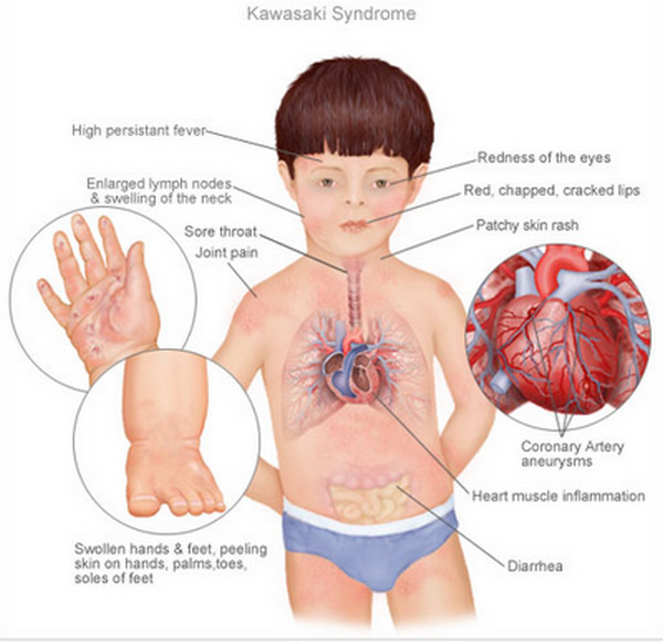 Kawasaki Disease Facts