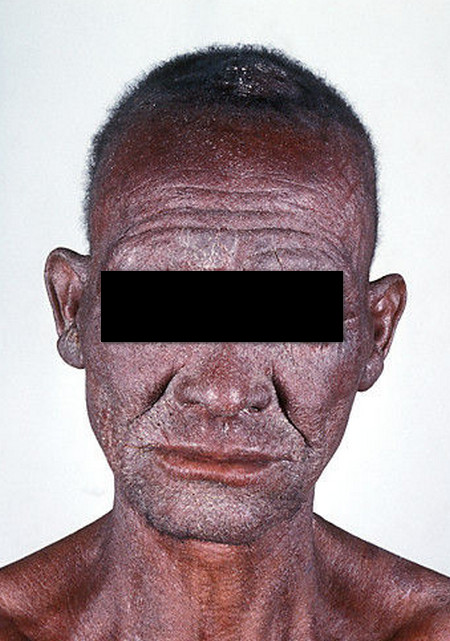 Redman syndrome Erythrodermatitis picture