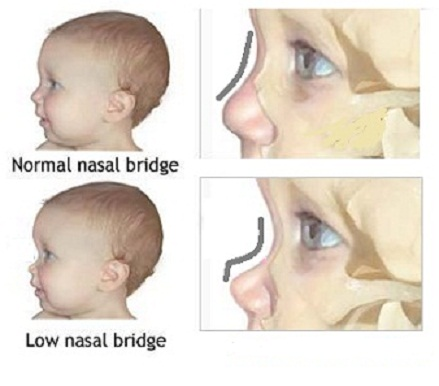 Williams syndrome nose pictures