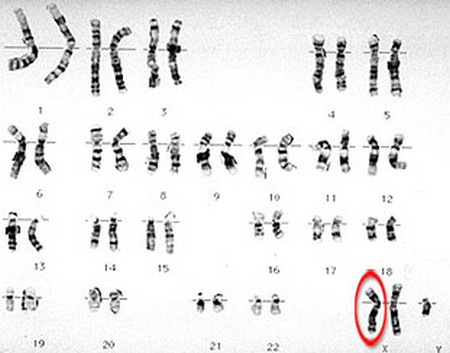 klinefelter s syndrome karyotype pictures
