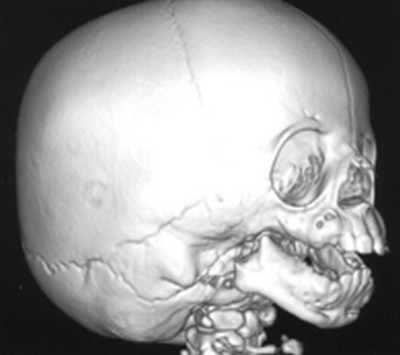 treacher collins syndrome skull