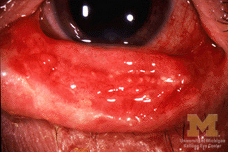 Steven Johnson Syndrome conjunctivitis