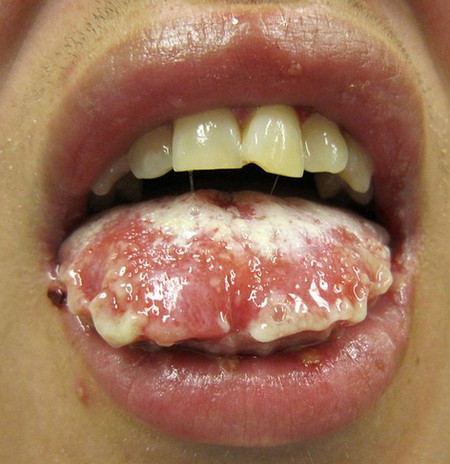 Steven Johnson Syndrome mouth