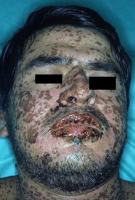 Steven Johnson Syndrome pictures