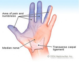 Carpal Tunnel Syndrome Photos