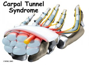 Carpal Tunnel Syndrome Pictures