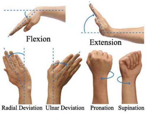 carpal tunnel syndrome pictures, Human Body