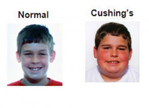 Cushing's Syndrome face