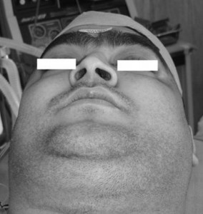 Cushing's Syndrome photos