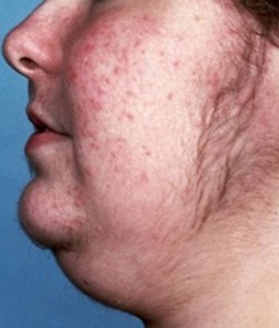 Cushing's Syndrome pics