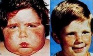 Cushing's Syndrome pictures