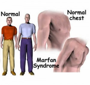 Marfan syndrome chest