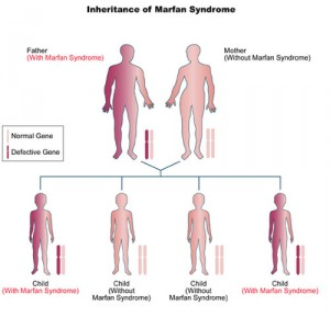 Marfan syndrome image