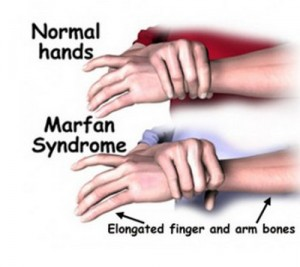 Marfan syndrome pictures