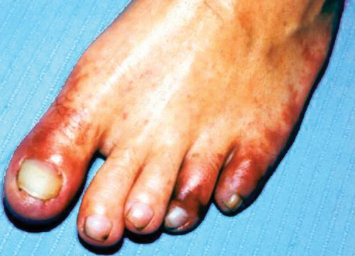 Blue toe syndrome pictures A bluish discoloration and impending necrosis of the toes.picture