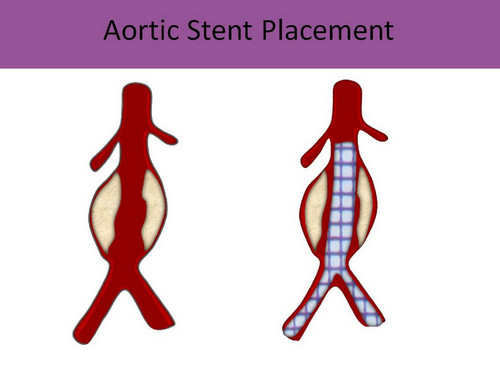 Blue toe syndrome pictures An aortic stent placement to improve the condition of the patient with blue toe syndrome.picture