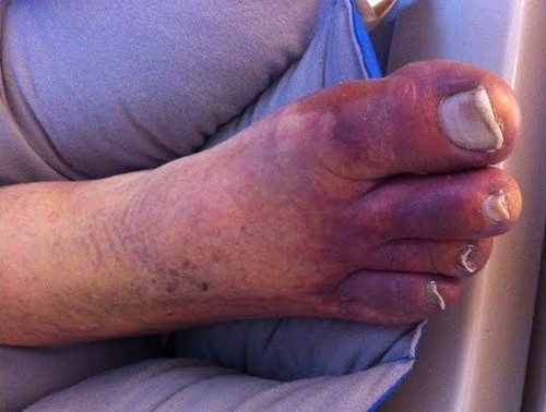 Blue toe syndrome pictures An image showing the typical clinical manifestations of blue toe syndrome.image