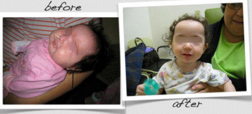 Pierre Robin syndrome pictures A before and after craniofacial surgery photo of a child with Pierre Robin syndrome.picture