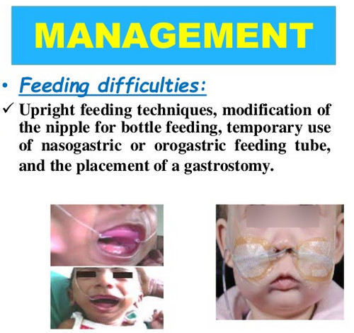 Pierre Robin syndrome pictures Feeding techniques in a patient with feeding difficulty secondary to Pierre Robin syndrome.image