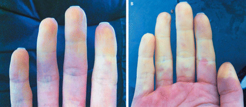 Raynaud's-syndrome-picture-The-fingers-are-pale-and-turns-red-after-some-time.-picture