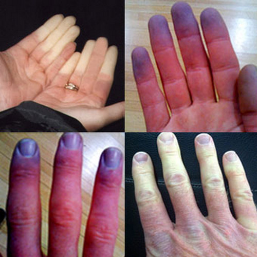 A severe form of Raynaud's disease which could lead to ulcers and gangrene if not treated.