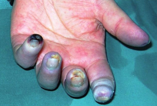 Raynaud's syndrome pictures Gangrene formation, a severe complication of Raynaud's disease.image