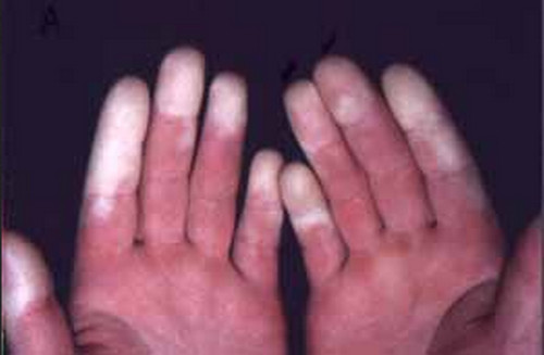 Raynaud's syndrome pictures.image