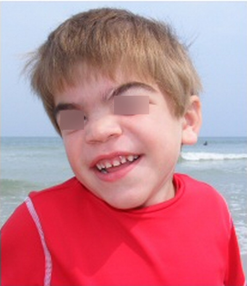 Sanfilippo syndrome pictures A child with Sanfilippo syndrome. He has thick bushy eyebrows and coarse thick hair.picture