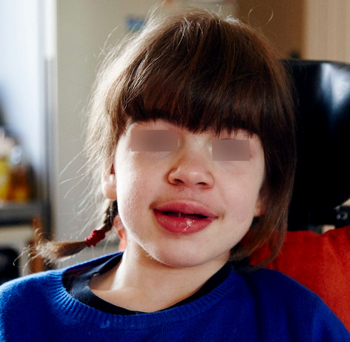 Sanfilippo syndrome pictures The child has thick and full lips, which are clinical manifestations of Sanfilippo syndrome.picture