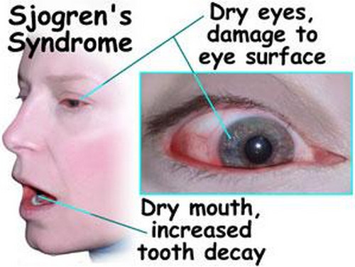 Sjogren's syndrome pictures The eyes and mouth are extremely dry. The surface of the eye is damaged due to excessive dryness.picture
