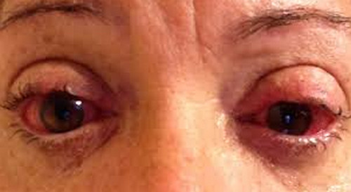 Sjogren's syndrome pictures The eyes are dry, red, and sensitive to light.image