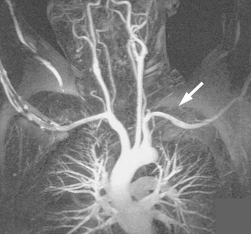 Thoracic outlet syndrome surgery pictures An angiogram of the arm was performed to check the artery at the thoracic outlet level.photo