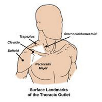 Thoracic outlet syndrome surgery pictures An image showing the thoracic outlet anatomy, which basically involves the muscles and nerves around the shoulder area.picture