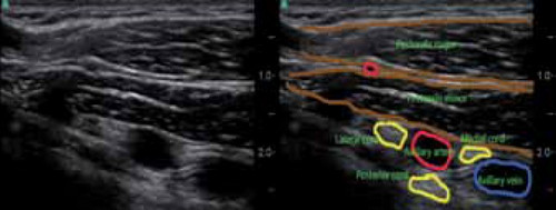Thoracic outlet syndrome surgery pictures An ultrasound image of a patient with thoracic outlet syndrome.picture