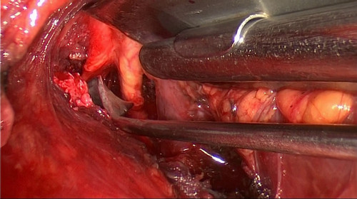 Thoracic outlet syndrome surgery pictures Thoracic outlet syndrome surgery via the trans-axillary approach.picture