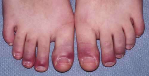 Raynaud's Syndrome Pictures